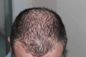 How to Stop Hair Loss for Men and Women