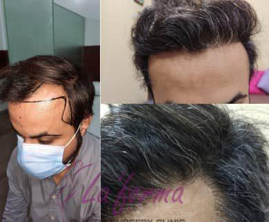fue best hair transplant new look