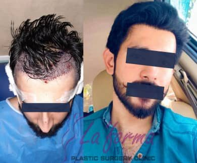 without head shave hair transplant